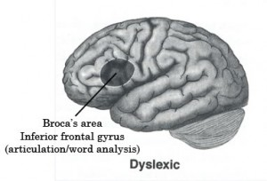 An image of what a Brain looks like with Dyslexia